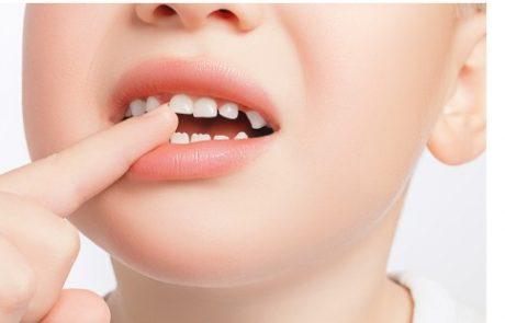 """<span class=""""entry-title-primary"""">כיצד לשמור על שיני הילדים ומה לעשות בעת חבלה?</span> <span class=""""entry-subtitle"""">באדיבות ד""""ר רולנדה ברקוביץ מומחית לרפואת שיניים לילדים.</span>"""