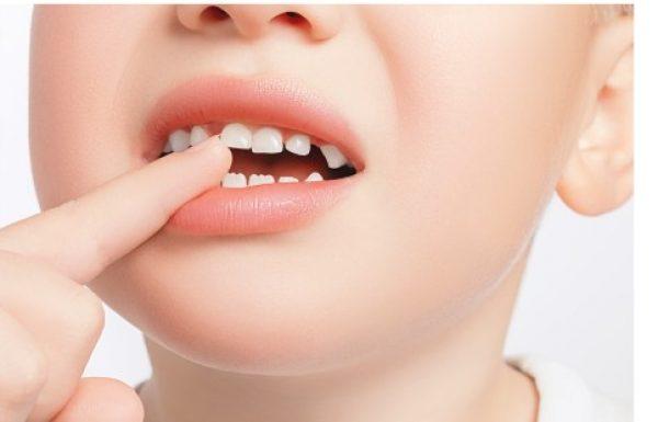 כיצד לשמור על שיני הילדים ומה לעשות בעת חבלה?